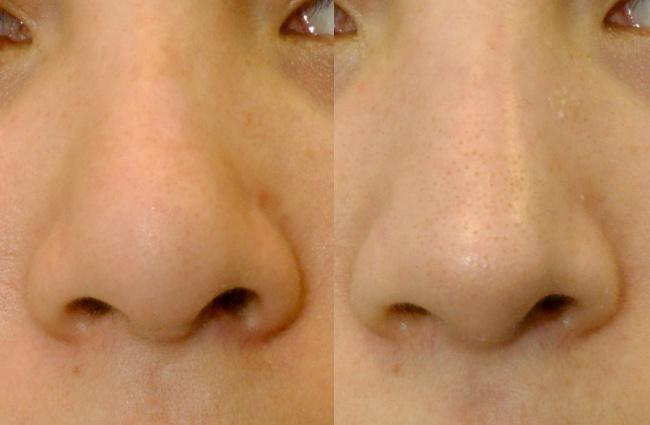 nariz-fibrosis02-dr-monreal