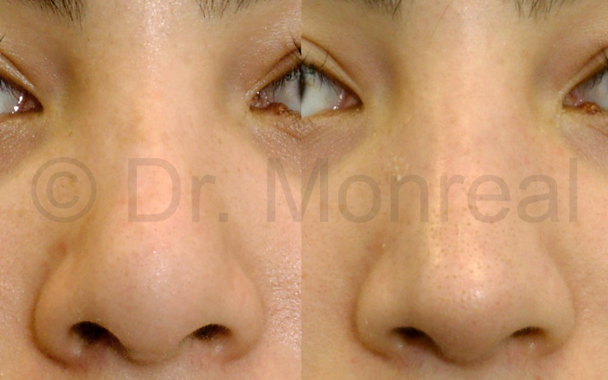 nariz-fibrosis03-dr-monreal