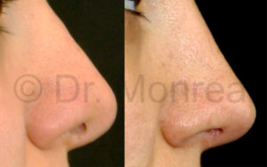nariz-fibrosis04-dr-monreal