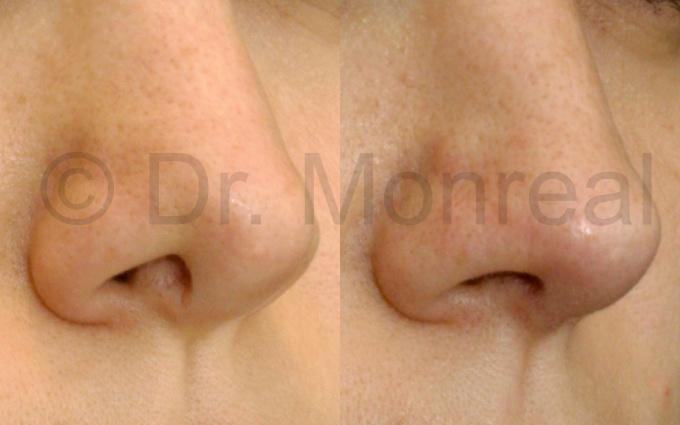 nariz-fibrosis05-dr-monreal