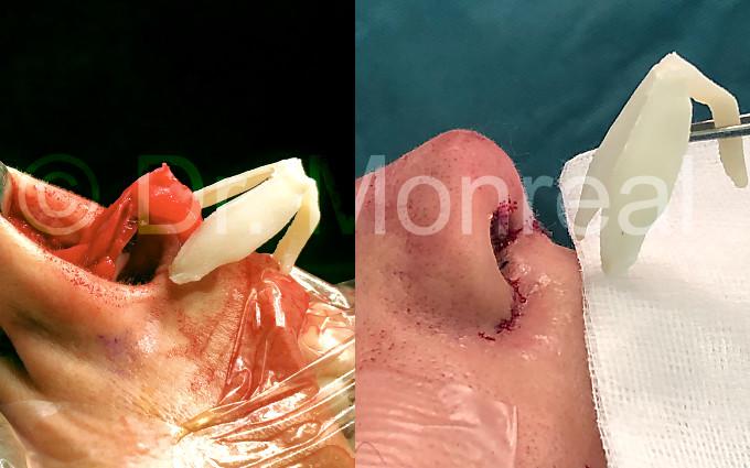 nariz-fibrosis07-dr-monreal