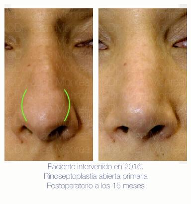 Antes Después de Rinoplastia. Dr. Juan Monreal