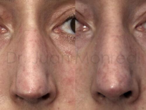 Lipoimplante-tratamiento-de-esclerodermia-dr-juan-monreal