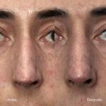 lipoimplante-tratamiento-de-esclerodermia
