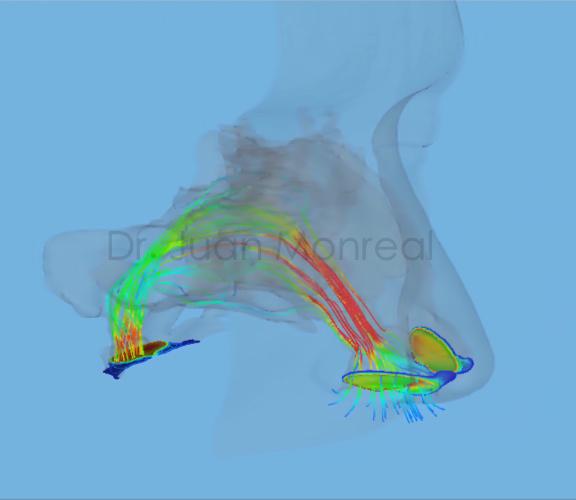 Cirugía Virtual - Obstrucción de nariz