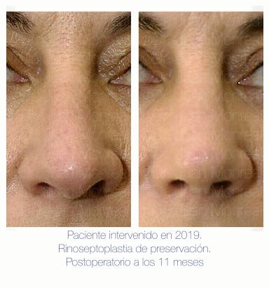 antes después rinoplastia de preservación Dr. Monreal