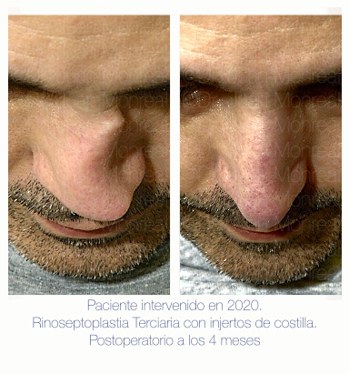 Antes Después Rinoplastia secundaria con injertos de costilla Dr Juan Monreal