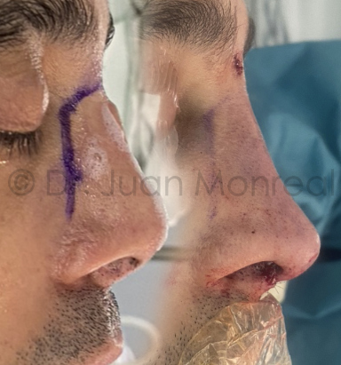 Antes Después de Rinoplastia secundaria realizada con injertos de costilla Dr Juan Monreal