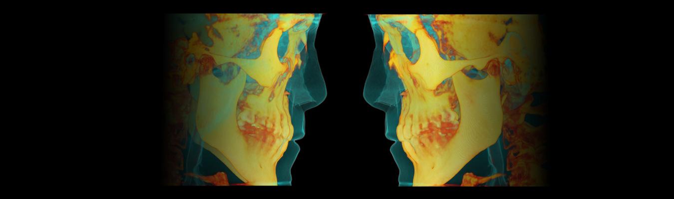 banner análisis rinoplstia secundaria